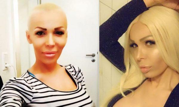 Edona James i mposhti kancerin, vjen më e fortë se kurrë (FOTO)
