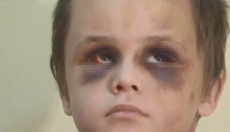Njerka e rrah mizorisht fëmiun 6 vjeçar, bashkë me burrin mundohet të fshehë rastin (FOTO)