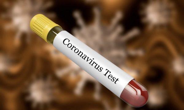 Koronavirusi është vetëm fillimi: Shkencëtarët paralajmërojnë më shumë sëmundje si kjo në të ardhmen