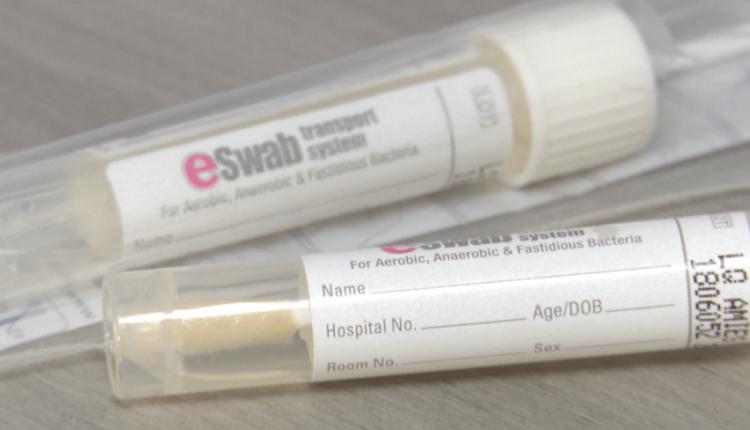 Testimi për koronavirus, pika në Çair s'është në funksion