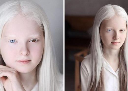 Kjo është vajza me një bukuri unike që ka albinizmi