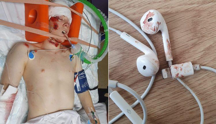 E rëndë! Ë ëma publikon fotot e djalit, që u aksidentua në rrugë. Apel të rinjve: Mos mbani kufje kur ecni (FOTO)