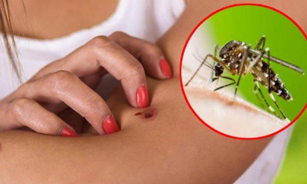 Katër mënyra natyrale për të mbajtur mushkonjat larg trupit tuaj