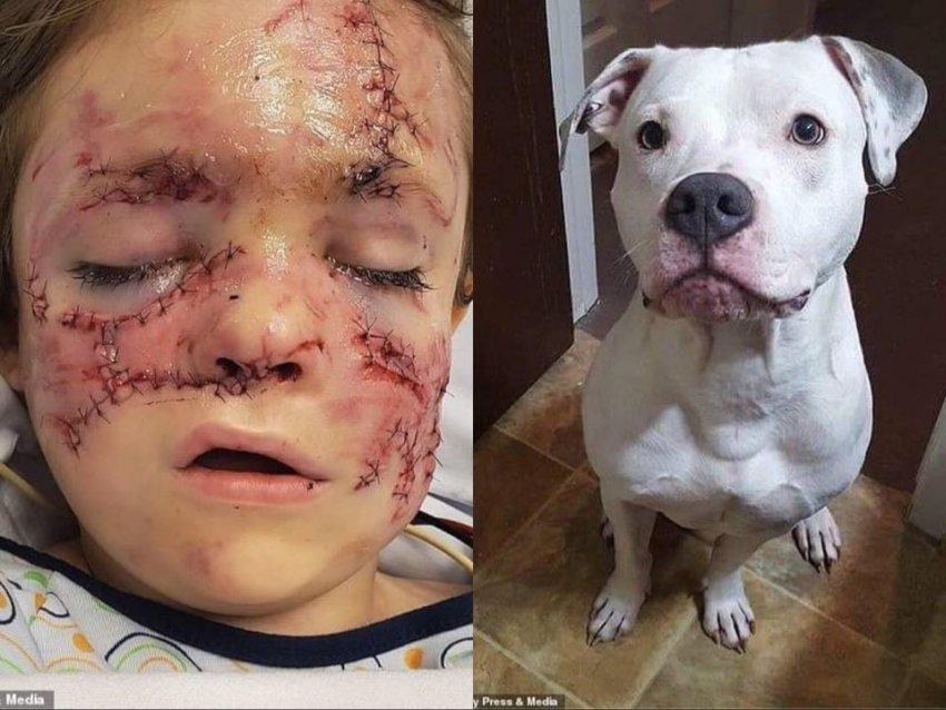 Lëndime të tmerrshme të djalit 6 vjeçar që u sulmua nga qeni i shtëpisë