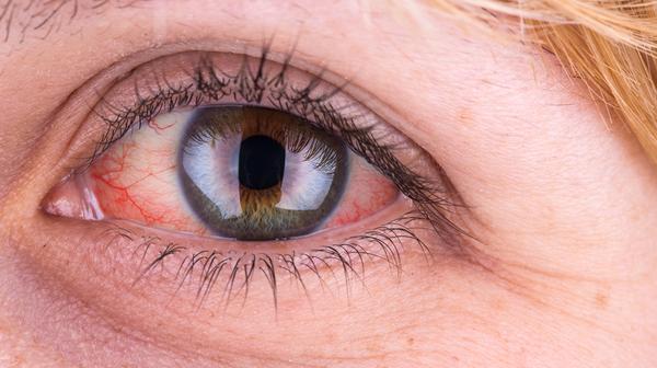 Sytë e kuq ju paralajmërojnë për sëmundjen e rëndë