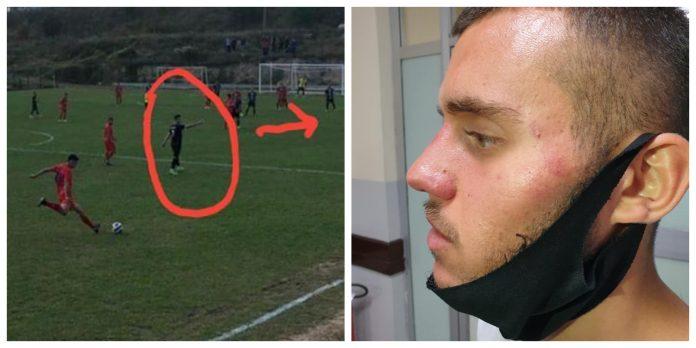Rrahje në futbollin e Kosovës, futbollistët dhe trajneri bëhen për spital