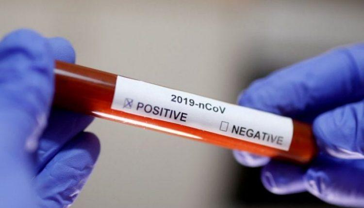 Aleanca Botërore e Doktorëve: Koronavirusi është grip sezonal, bartja e maskës është e kotë