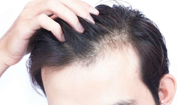 Shpëtoni nga flokët e thinjur me këtë përbërës