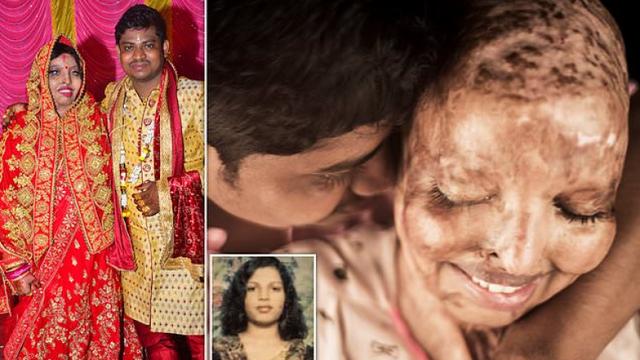 """E dogjën me acid se refuzoi të martohej që 15-vjeçe, njihuni me historinë e të resë indiane, e martuar me """"dashurinë e jetës"""""""