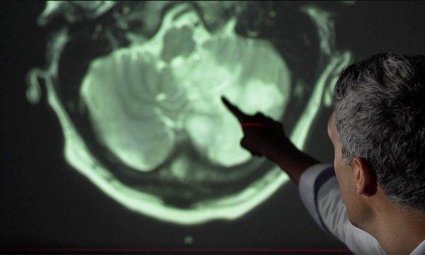 Studim: Një në tre pacientë me Covid-19 diagnostikohet me probleme mendore