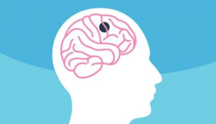 Studimi: Kombinimi i disa ilaçeve mund të ndryshojë historinë e kancerit të trurit