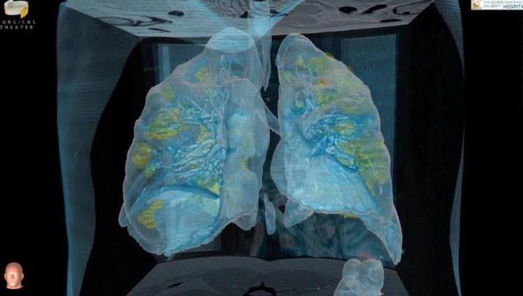 Mjekët japonezë kryejnë transplantin e parë të mushkërive në botë