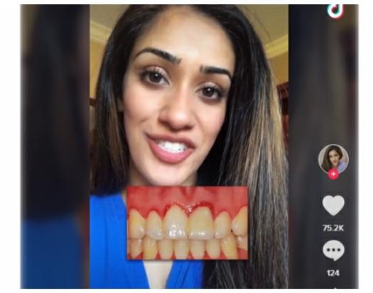 Habit studentja e stomatologjisë: Shtatzënia dihet duke shikuar në gojë
