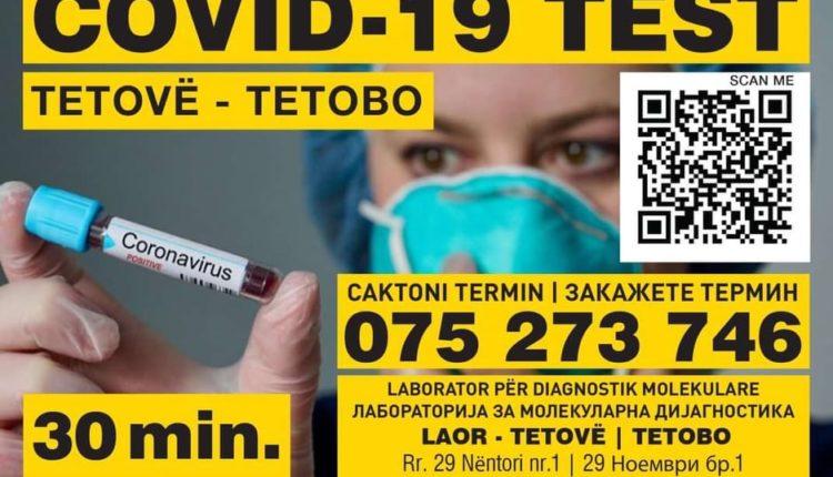 LABORATORI LAOR NË TETOVË-LIDER PËR ANALIZA GJAKU DHE TESTIM PËR VIRUSIN COVID19