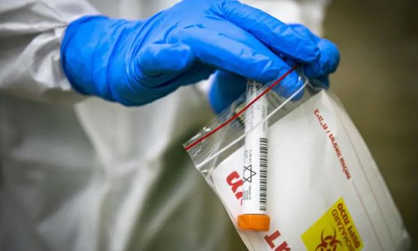 Izraeli regjistron 3.818 raste të reja me koronavirus