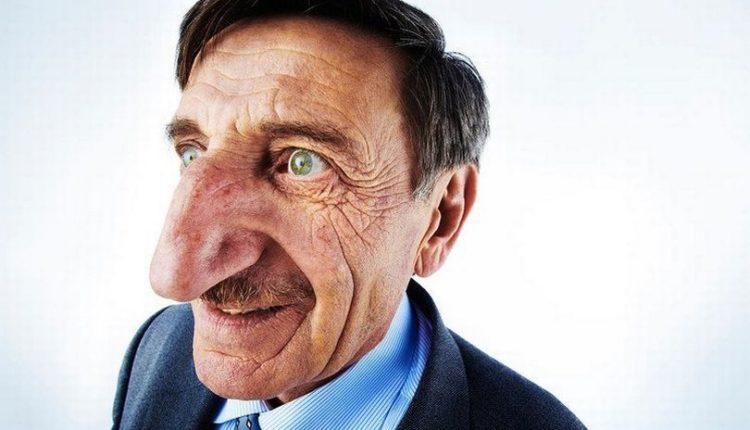 Ky është 71 vjeçari me hundën më të madhe në botë